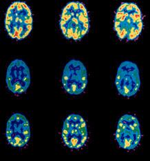 Brain-scan-21.jpg (218×233)