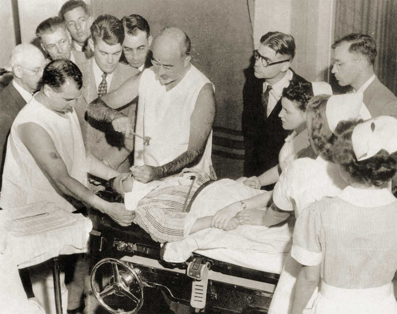What is a lobotomy Effects of lobotomy 66